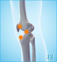 前十字靭帯損傷 膝の横側の痛み