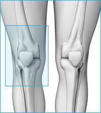 医療用の後十字靭帯用膝サポーター|膝の前側の痛み