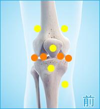 医療用の後十字靭帯用膝サポーター|膝の前側の痛み(後十字靭帯損傷の合併症)