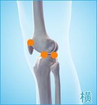 医療用の後十字靭帯用膝サポーター|膝の横の痛み(後十字靭帯損傷の合併症)