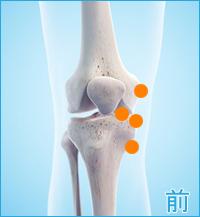膝の前側の痛み(内側側副靭帯損傷,内側半月板損傷)