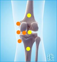膝の裏側の痛み(内側側副靭帯損傷,内側半月板損傷)