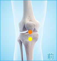 前十字靭帯損傷の膝の前側の痛み