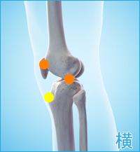 膝の痛み(膝蓋骨軟化症,オスグッドシュラッター病)