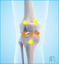 膝の前側の痛み(膝蓋靭帯の痛み,膝蓋骨の痛み,関節の痛み)