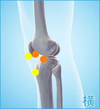 膝の横側の痛み(膝蓋靭帯の痛み,膝蓋骨の痛み,関節の痛み)