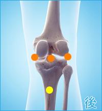 膝の後側の痛み(膝蓋靭帯の痛み,膝蓋骨の痛み,関節の痛み)