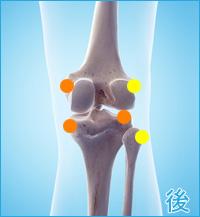 膝の痛み4