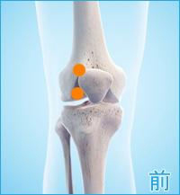 膝の痛み(膝蓋骨脱臼全面)