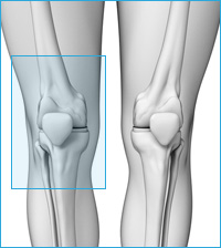 オスグッドシュラッター病の膝の痛み