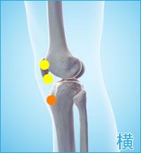 膝の横の痛み(オスグッドシュラッター病)