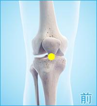 ベーカー嚢腫の膝の前側の痛み