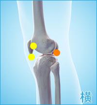 ベーカー嚢腫の膝の横の痛み