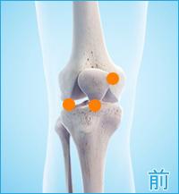 膝の前側の痛み(膝蓋軟骨軟化症,膝の軟骨損傷,変形性膝関節症)