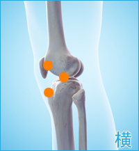 前十字靭帯損傷の後遺症の痛み(膝の横)