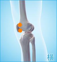 膝の横側の痛み(膝蓋骨裏の痛み,膝蓋骨の痛み,関節の痛み)