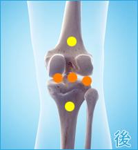 膝の後ろ側の痛み(後十字靭帯損傷の合併症)