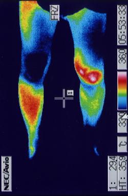 膝サポーターと併用して治癒効果を上げた前十字靭帯損傷の治療例 治療前