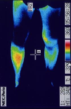 膝サポーターと併用して治癒効果を上げた前十字靭帯損傷の治療例 治療後